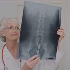 Doctor examining spinal cord injury