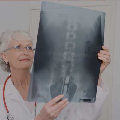 05-spinal-cord-injury-sm